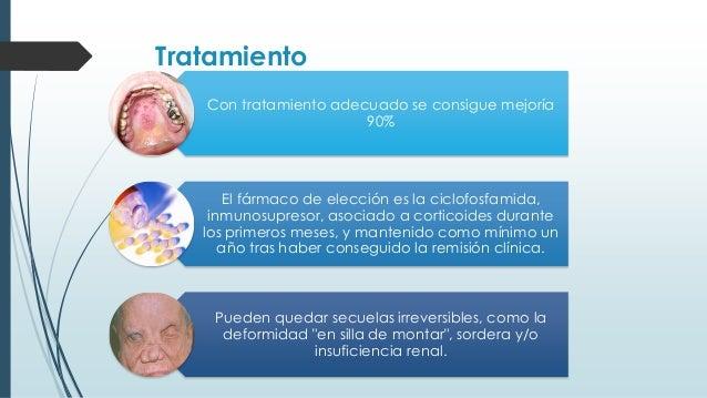 Tratamiento Con tratamiento adecuado se consigue mejoría 90% El fármaco de elección es la ciclofosfamida, inmunosupresor, ...