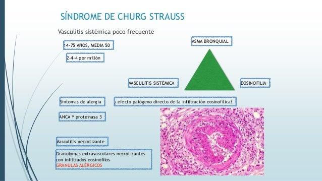 SÍNDROME DE CHURG STRAUSS Vasculitis sistémica poco frecuente EOSINOFILIA Granulomas extravasculares necrotizantes con inf...