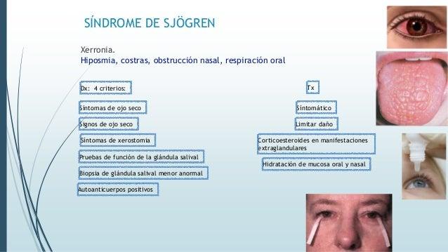 SÍNDROME DE SJÖGREN Xerronia. Hiposmia, costras, obstrucción nasal, respiración oral Dx: 4 criterios: Pruebas de función d...