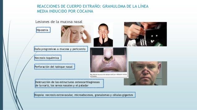 REACCIONES DE CUERPO EXTRAÑO: GRANULOMA DE LA LÍNEA MEDIA INDUCIDO POR COCAINA Lesiones de la mucosa nasal Hiposmia Daño p...