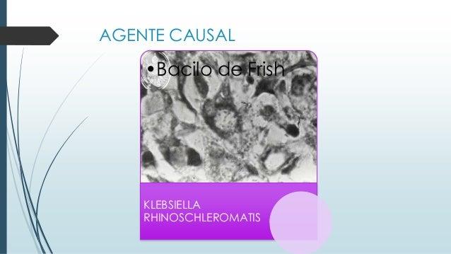 2-5 u •Bacilo de Frish KLEBSIELLA RHINOSCHLEROMATIS AGENTE CAUSAL