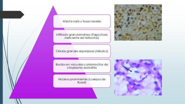 Afecta nariz y fosas nasales Infiltrado granulomatoso (Fagocitosis ineficiente de histiocitos) Células grandes esponjosas ...