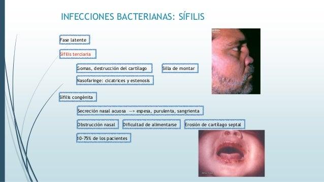 INFECCIONES BACTERIANAS: SÍFILIS Fase latente Sífilis terciaria Secreción nasal acuosa —> espesa, purulenta, sangrienta Go...