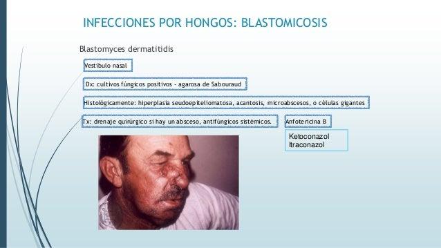 INFECCIONES POR HONGOS: BLASTOMICOSIS Blastomyces dermatitidis Vestíbulo nasal Dx: cultivos fúngicos positivos - agarosa d...