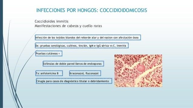 INFECCIONES POR HONGOS: COCCIDIOIDOMICOSIS Coccidioides immitis Manifestaciones de cabeza y cuello raras Infección de los ...