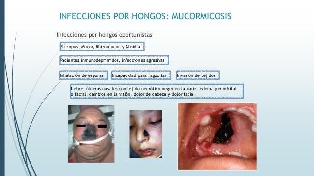 INFECCIONES POR HONGOS: MUCORMICOSIS Infecciones por hongos oportunistas Rhizopus, Mucor, Rhizomucor, y Absidia Pacientes ...
