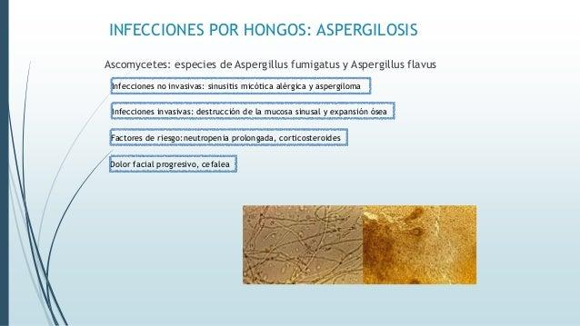 INFECCIONES POR HONGOS: ASPERGILOSIS Tx: Desbridamiento quirúrgico Anfotericina B TAC: lesión focal de tejidos blandos, su...