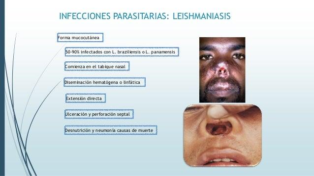 INFECCIONES PARASITARIAS: LEISHMANIASIS Leishmaniasis visceral Hígado, bazo y médula ósea L. donovani o L. infantum Infilt...