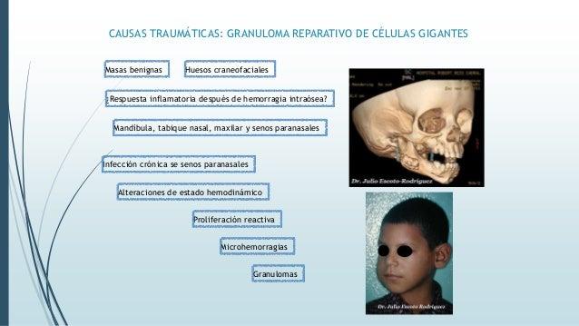 CAUSAS TRAUMÁTICAS: GRANULOMA REPARATIVO DE CÉLULAS GIGANTES + Femenino 30 años Obstrucción nasal, epistaxis, disosmia, ed...