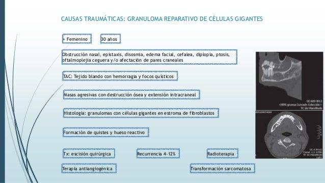 CAUSAS TRAUMÁTICAS: HEMANGIOMA CAPILAR LOBULAR Tumor benigno Piel o membranas mucosas Trauma Adolescentes varones ¿Verdade...