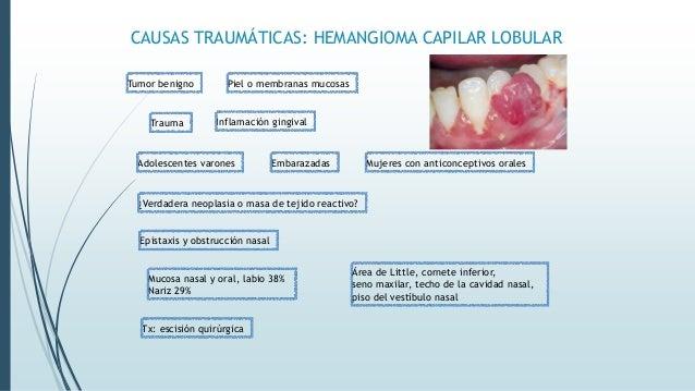 OTRAS CAUSAS: ENFERMEDAD INFLAMATORIA DEL INTESTINO Enfermedad de Crohn Colitis ulcerosa Granulomas no caseificantes e inf...