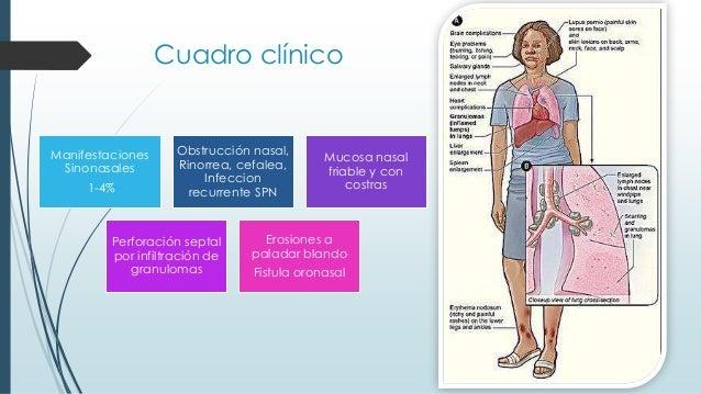 Cuadro clínico Manifestaciones Sinonasales 1-4% Obstrucción nasal, Rinorrea, cefalea, Infeccion recurrente SPN Mucosa nasa...