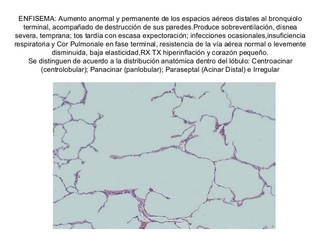 ENFISEMA: Aumento anormal y permanente de los espacios aéreos distales al bronquiolo   terminal, acompañado de destrucción...