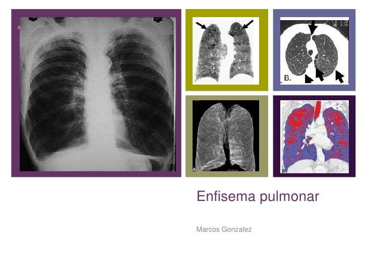 +    Enfisema pulmonar    Marcos Gonzalez