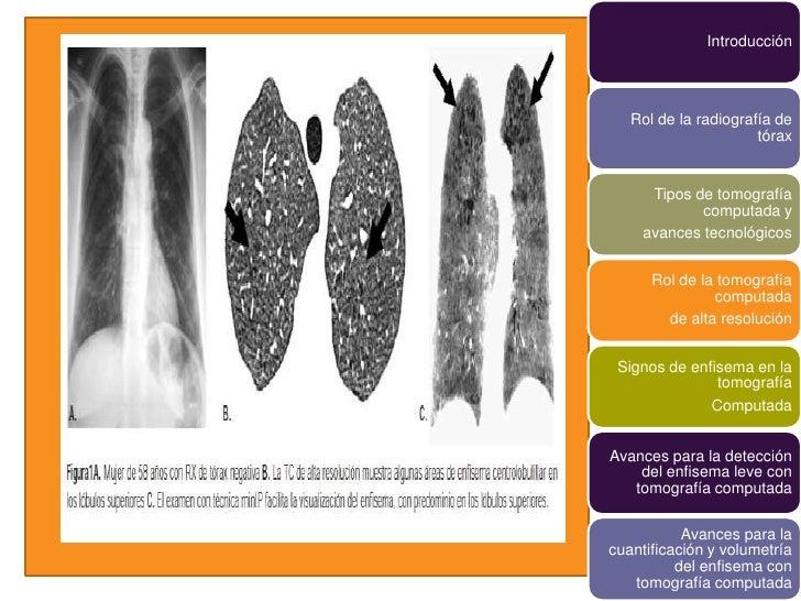 Introducción   Rol de la radiografía de                      tórax      Tipos de tomografía             computada y     av...