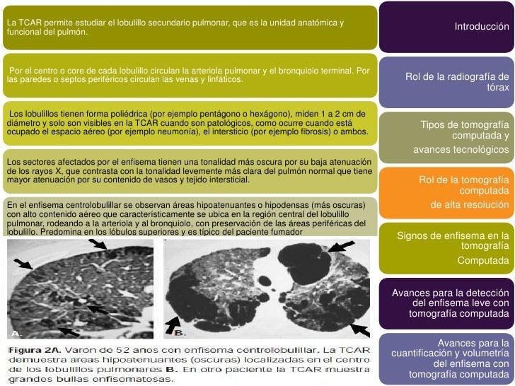 La TCAR permite estudiar el lobulillo secundario pulmonar, que es la unidad anatómica y                              Intro...
