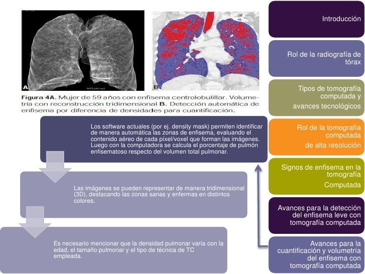 Introducción                                                                                    Rol de la radiografía de  ...