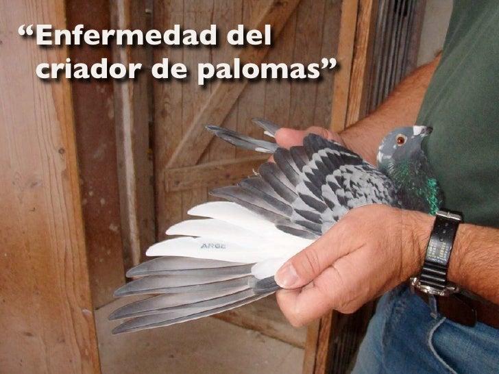 """""""Enfermedad del  criador de palomas"""""""