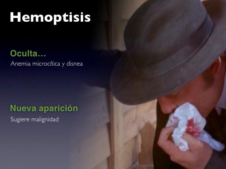 Hemoptisis  Oculta… Anemia microcítica y disnea     Nueva aparición Sugiere malignidad