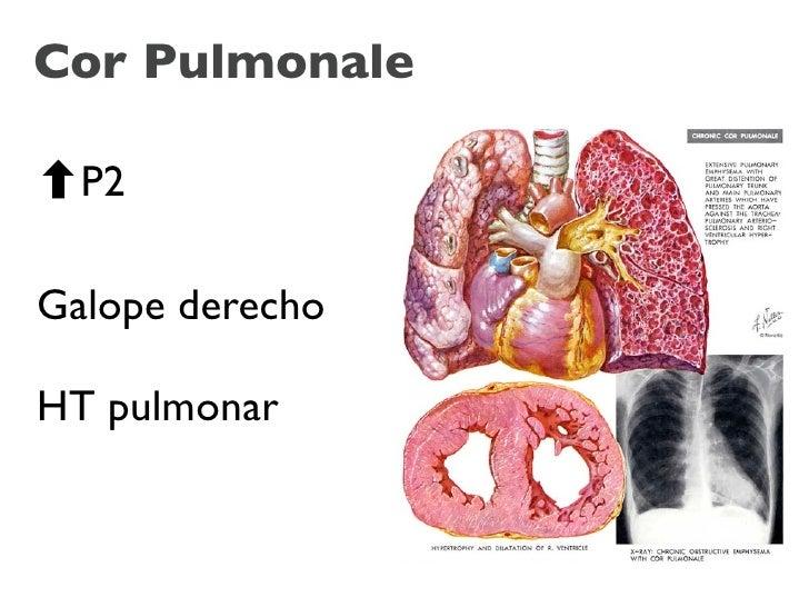 Cor Pulmonale    P2  Galope derecho  HT pulmonar