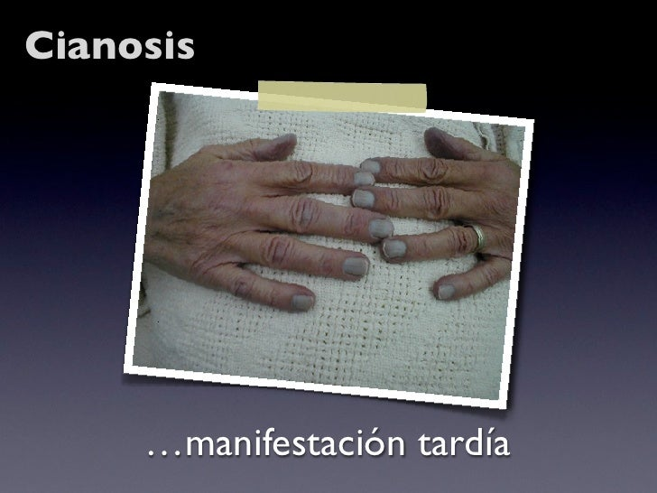 Cianosis          …manifestación tardía