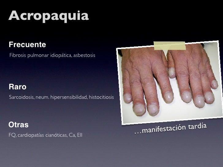 Acropaquia Frecuente Fibrosis pulmonar idiopática, asbestosis     Raro Sarcoidosis, neum. hipersensibilidad, histocitiosis...