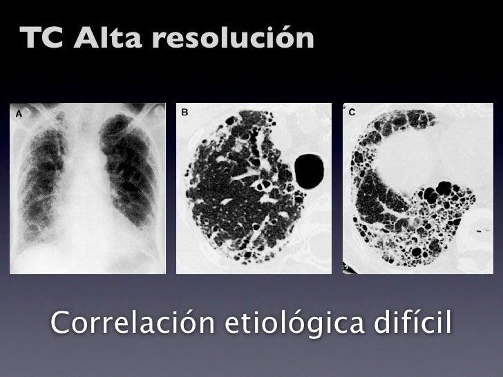Ecocardiograma       ¿Cuándo?   …con reducción moderada                                     ar                            ...