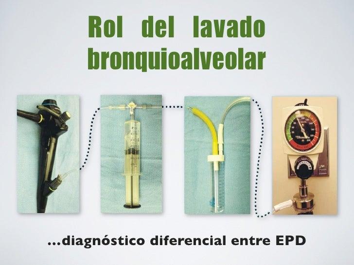 Biopsia quirúrgica x VTC        Biopsia transbronquial        Para obtener múltiples       Sarcoidosis, Carcinomatosis,  m...