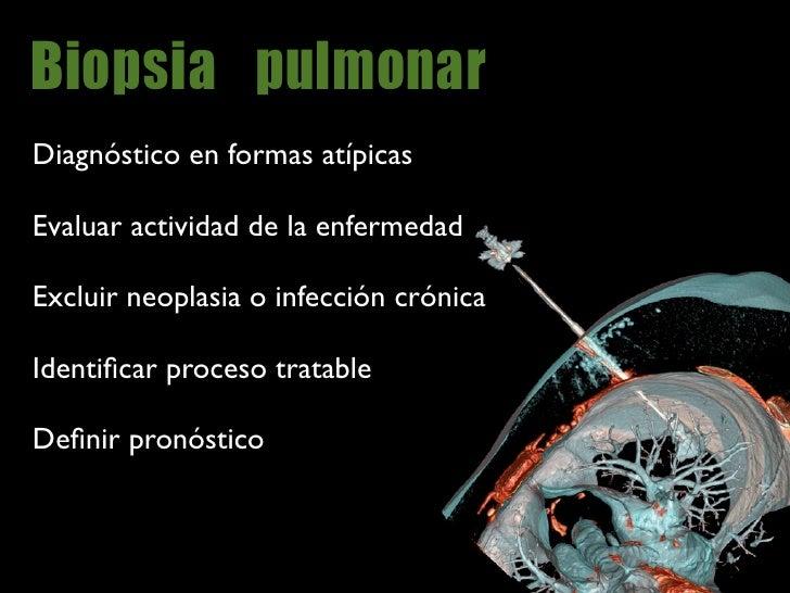 Biopsia                   Estudio histológico      FPI (UIP)                         Otras NII (no FPI)     NSIP DIP RB-IL...