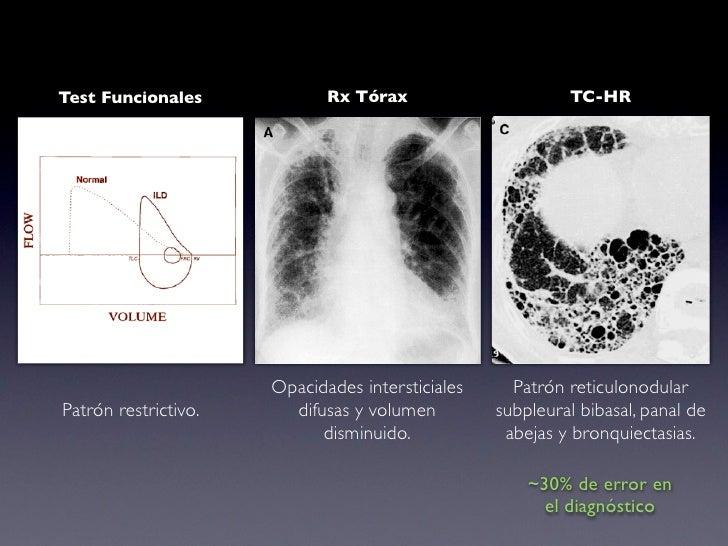 UIP Patrón heterogéneo con áreas de tejido normal                         Inflamación intersticial                         ...