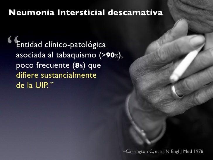 """Rx Tórax                   TC-HR     Lesiones menos severas     Opacidad tipo """"vidrio que UIP y normal en      esmerilado""""..."""