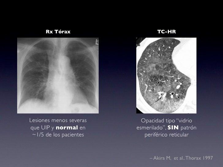 Bronquiolitis Respiratoria asociada a EPD