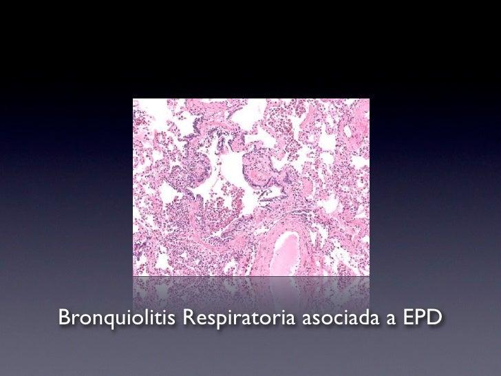 """Bronquiolitis respiratoria    """"Entidad histo-patológica  caracterizada por macrófagos  pigmentados intraluminales en  bron..."""
