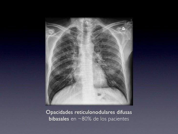 Neumonia Intersticial Aguda
