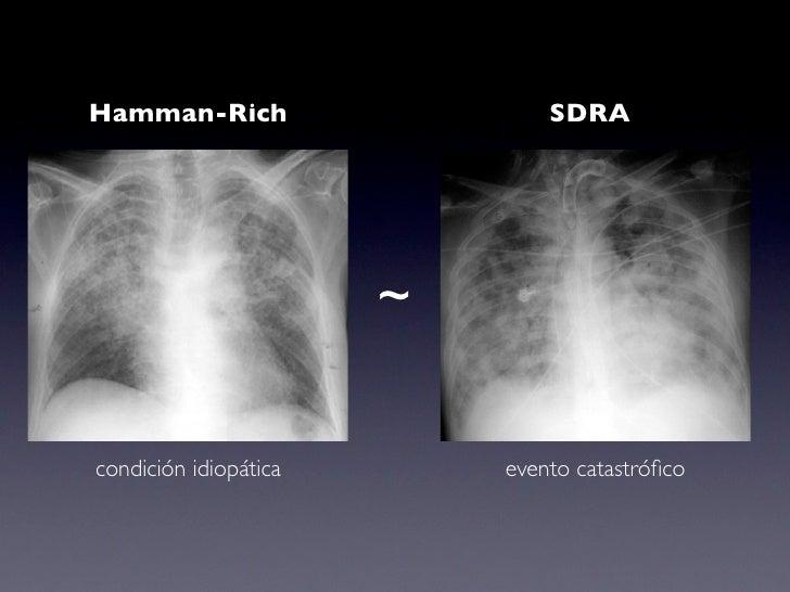 Neumonia Intersticial Linfocítica