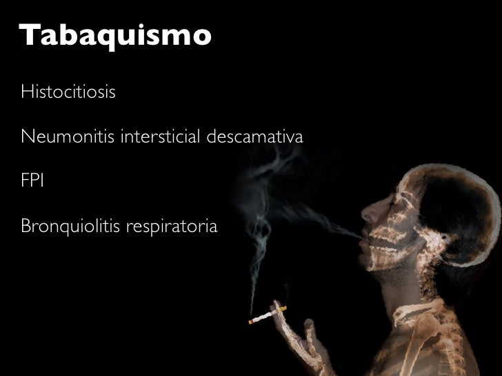 Tabaquismo Histocitiosis  Neumonitis intersticial descamativa  FPI  Bronquiolitis respiratoria