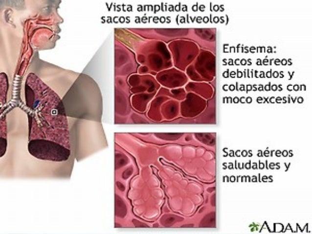 Manejo odontológico • • • • • • • •  Por el tabaquismo: Periodontitis, leucoplasias… Por las inhalaciones con corticoides:...
