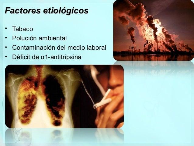 TBC • Enfermedad infecciosa crónica transmisible producida por Mycobacterium tuberculosis: • BAAR. • No esporulado, no cap...