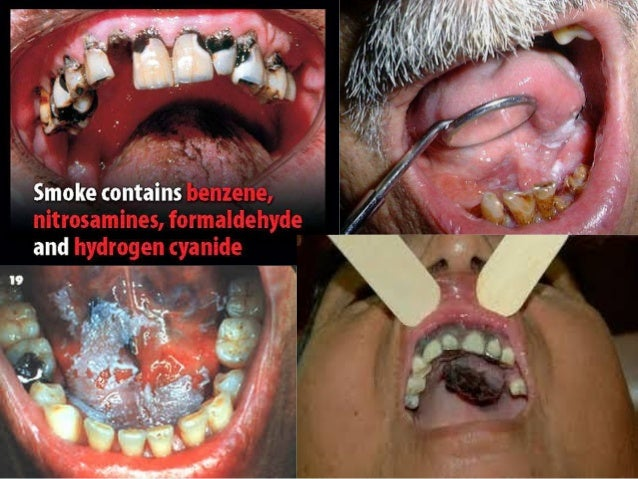 Paciente con tto antituberculoso  • • • • • •  Etambutol Pirazinamida Isoniacida Rifampicina Efecto hepatotóxico → Evitar ...