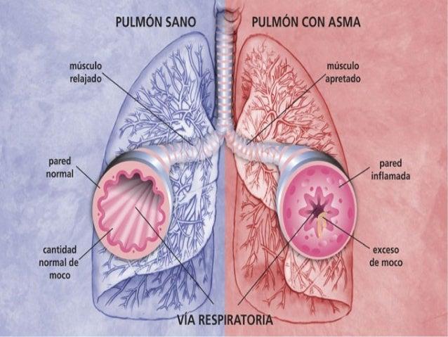 Manifestaciones clínicas • Tos seca • Opresión torácica: peso (no produce dolor como en las patologías coronarias) • Disne...