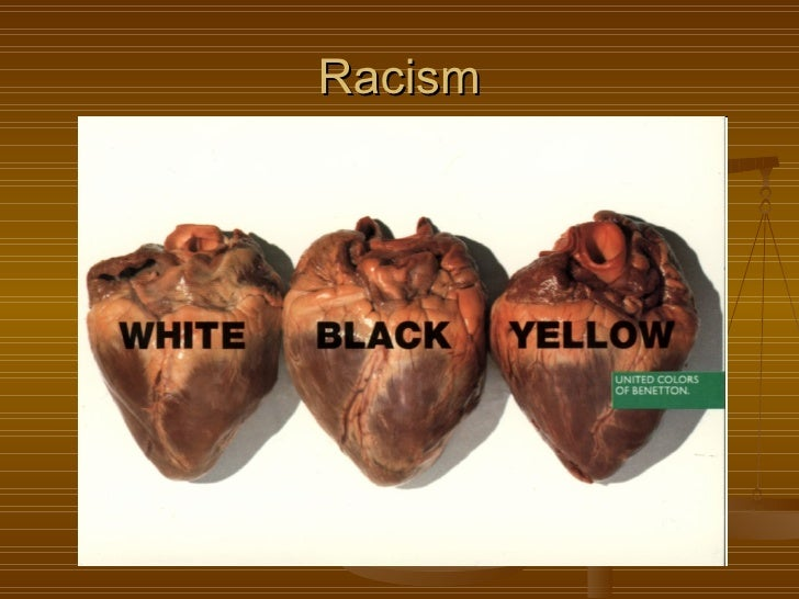 why is racism a social problem