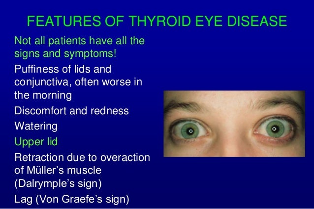 Ophthalmic Manifestations Of Systemic Disorders