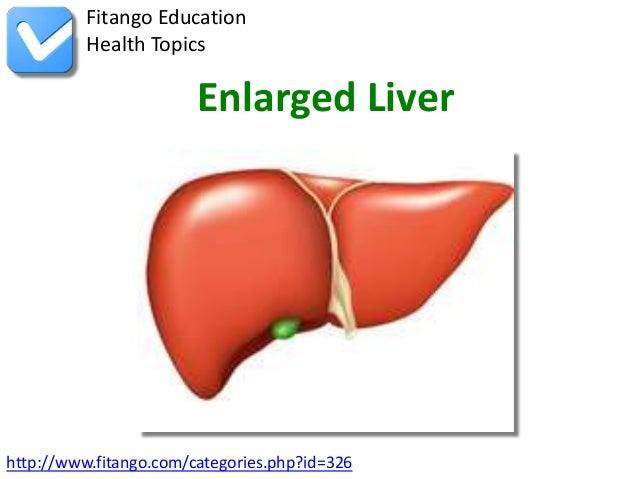 enlarged-liver-1-638?cb=1366141922, Skeleton