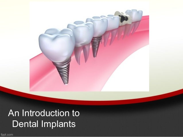 An Introduction to Dental Implants