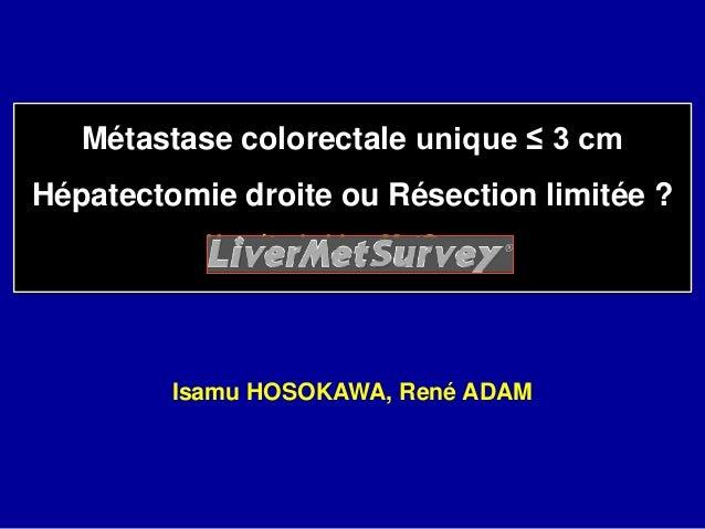 Métastase colorectale unique ≤ 3 cm Hépatectomie droite ou Résection limitée ? Une étude LiverMetSurvey Isamu HOSOKAWA, Re...