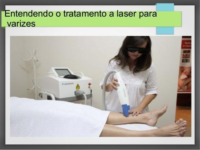 Entendendo o tratamento a laser para varizes