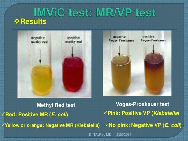 Test e jv test results