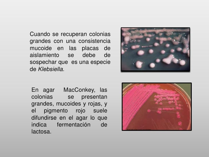    Las especies de aislamiento clínico frecuente son    Klebsiella pneumoniae subespecie pneumoniae y    K. oxytoca.Klebs...