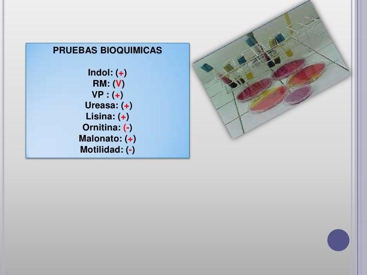 Diferenciación de especies en los géneros Klebsiella y Raoultella