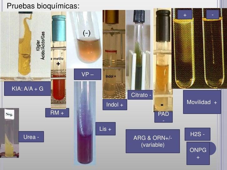 Pruebas bioquímicas:                                                            +            -                       VP – ...